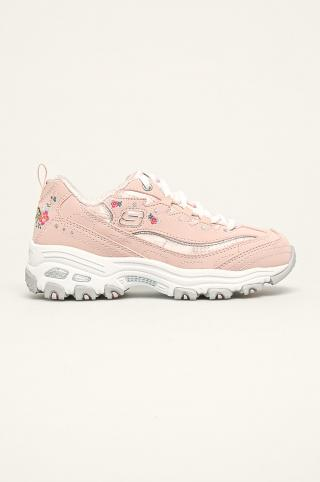 Skechers - Detské topánky ružová 30
