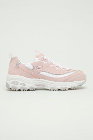 Skechers - Detské topánky ružová 37